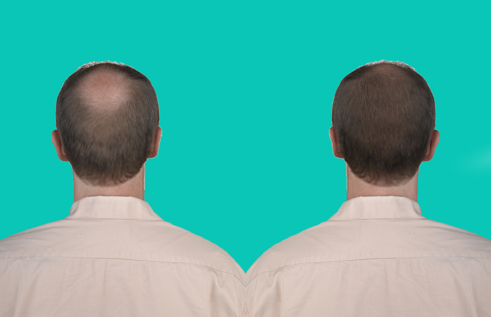 Difference Between the Mature Hairline and Receding Hairline